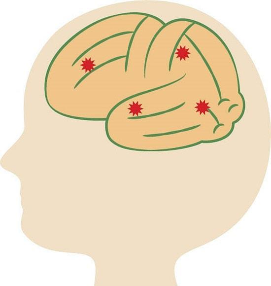 多発性脳梗塞